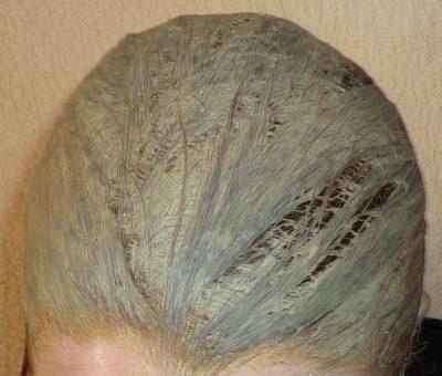 Cataplasme ail repousse cheveux