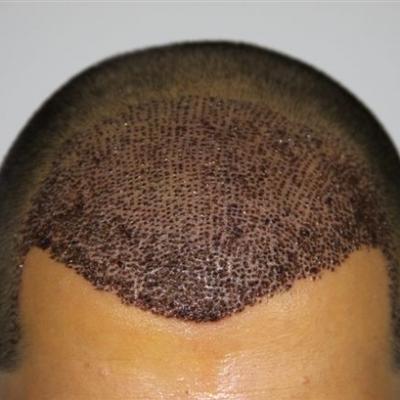 تساقط البصيلات بعد زراعة الشعر