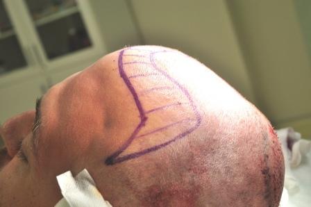 implant capillaire pas cher turquie