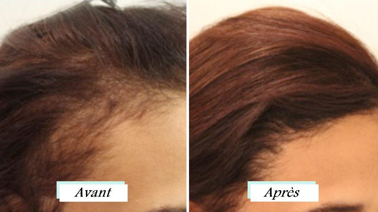woman hair transplant turkey