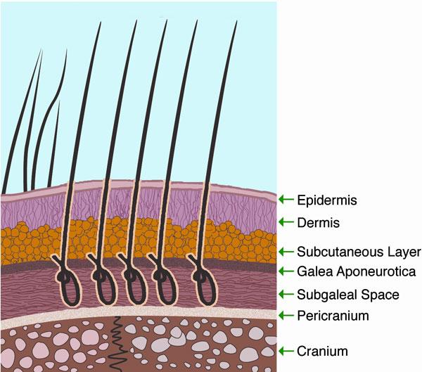 Greffe de cheveux biofibre 1