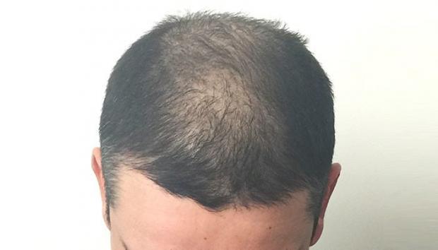 Greffe de cheveux manque de densite