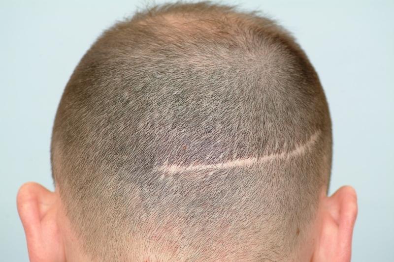 Greffe de cheveux sur cicatrice