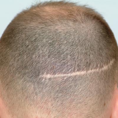 زراعة الشعر فوق الندبات