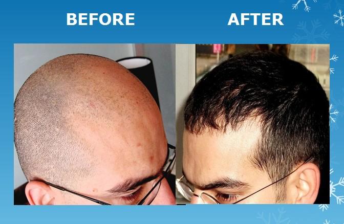 Greffe capillaire photo avant après