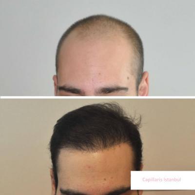 Greffe de cheveux turquie 7
