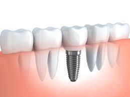 Implant dentaire turquie